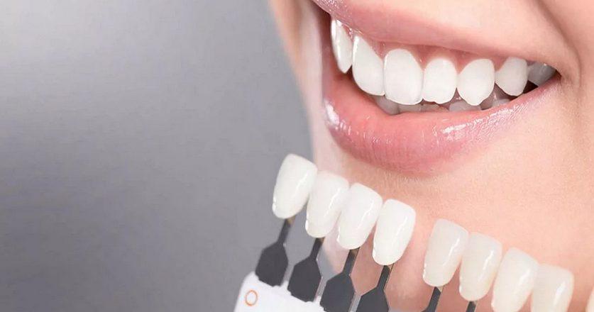 Общая информации об отбеливании зубов